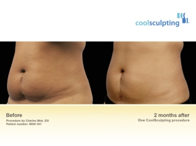 Coolsculpting Cryolipolyse