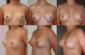 Augmentation mammaire prix Cannes