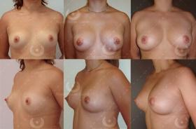 Lipofilling mammaire prix Nice