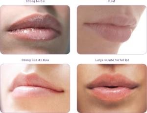Rides Lèvres