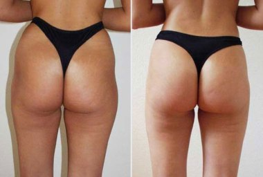 liposuccion sans chirurgie