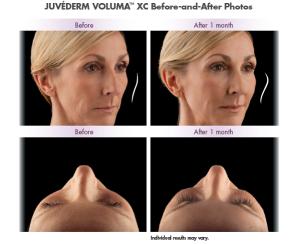 Lifting visage sans Chirurgie prix Paris